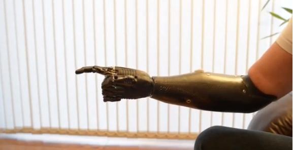 Video:El brazo al estilo Terminator ya esta esta siendo utilizado por humanos que le faltaextremidades